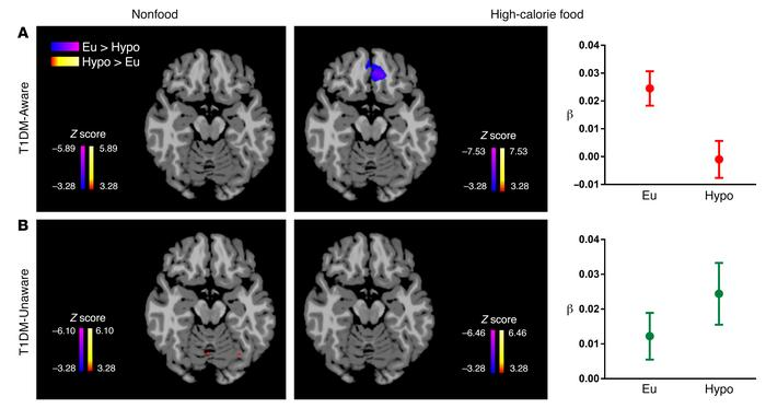 Brain responses to high-calorie food cues. Axial brain slices (Z = –17) ...