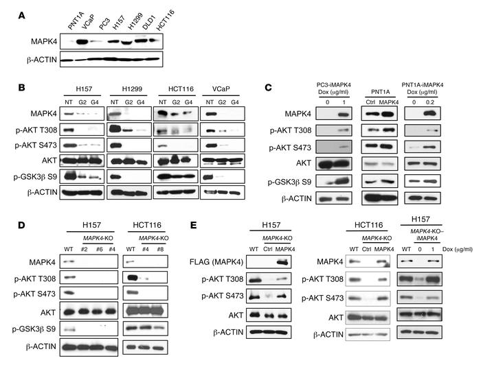 MAPK4 activates AKT. (A) Western blots on MAPK4 expression in various hu...