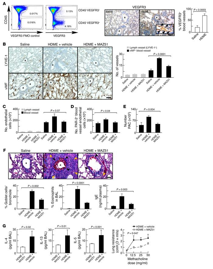 Inhibition of pathological angiogenesis by VEGFR3 kinase inhibitor reduc...