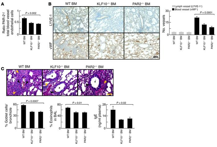 Pathological angiogenesis and airway inflammation blocked by KLF10-defic...