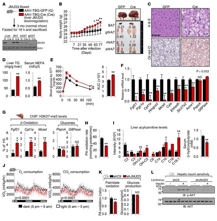 Liver-specific downregulation of JMJD3 leads to impaired β-oxidation and...