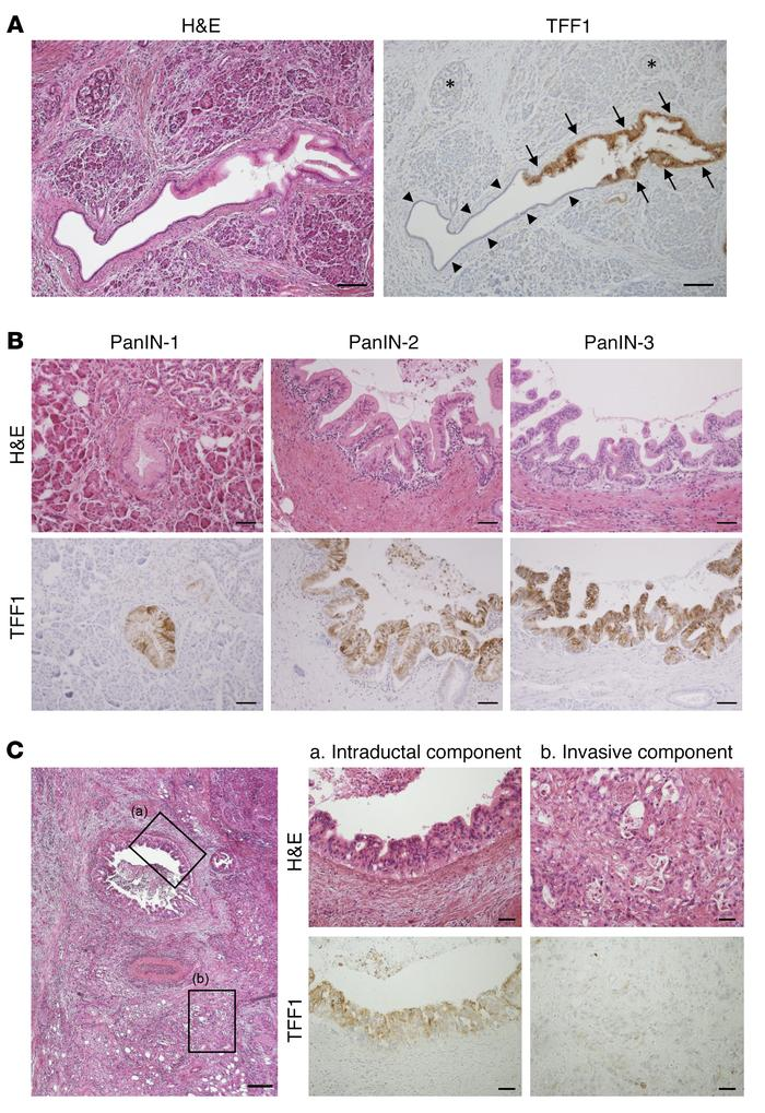 TFF1 expression is lost in the invasive component of pancreatic adenocar...