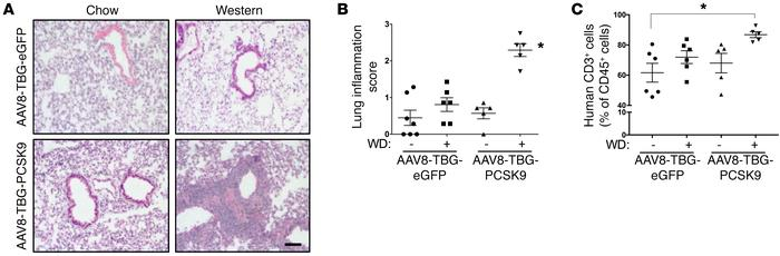 Lung inflammation is increased in PCSK9-WD mice. (A and B) Lung sections...