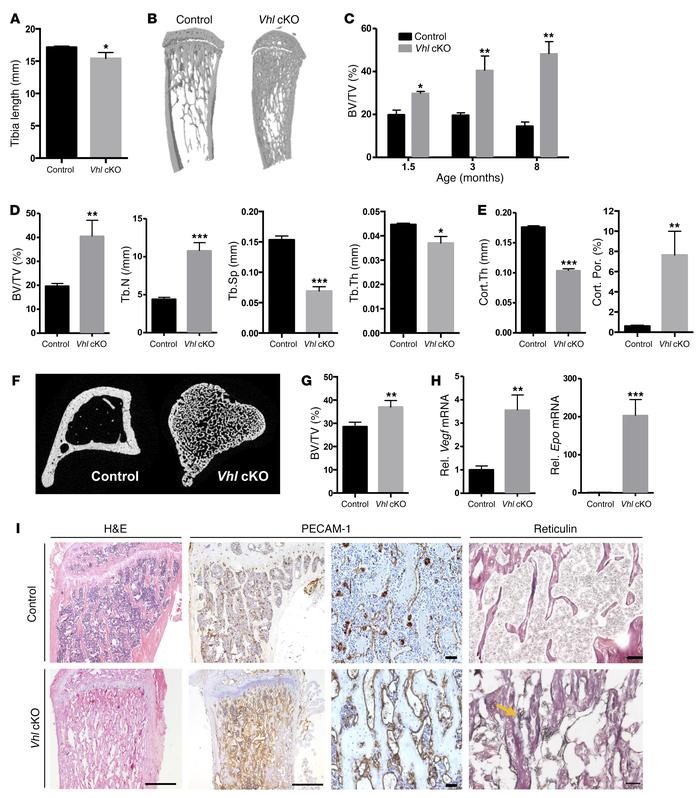 High bone mass and skeletal abnormalities in mice lacking Vhl in osteobl...