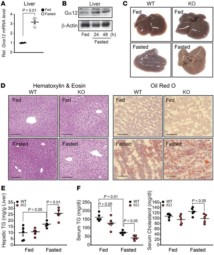 Association of Gα12 signaling with fasting-induced liver steatosis. (A) ...