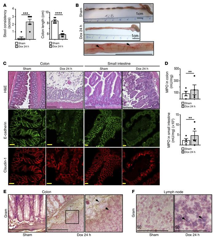 TNK1 expression impairs the functionality of the intestinal barrier. (A ...
