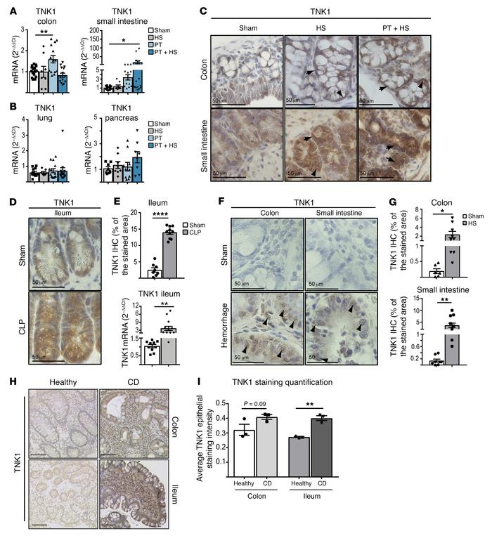 TNK1 expression is dysregulated in response to stress across various spe...