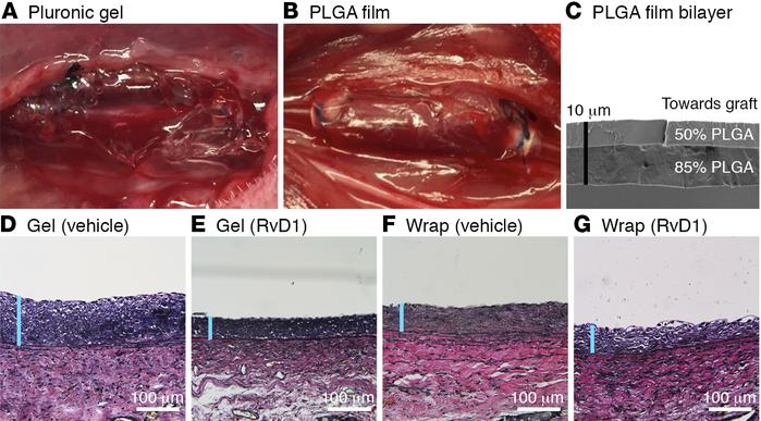 Perivascular delivery of RvD1 to rabbit vein grafts. (A and B) Images de...