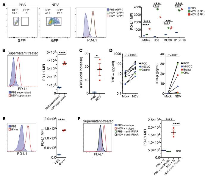 Upregulation of PD-L1 in tumor cells by NDV-induced type I IFN. (A) PD-L...