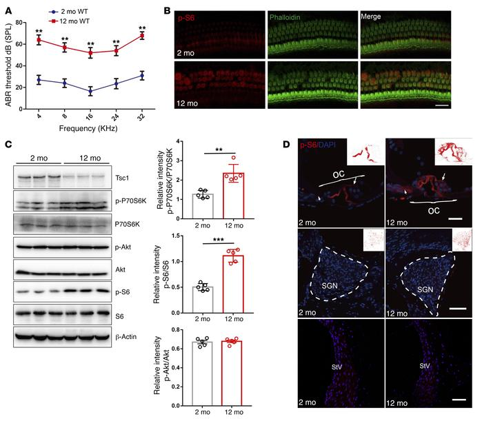 mTORC1 signaling is activated in the NSE of aging cochlea in C57BL/6J mi...