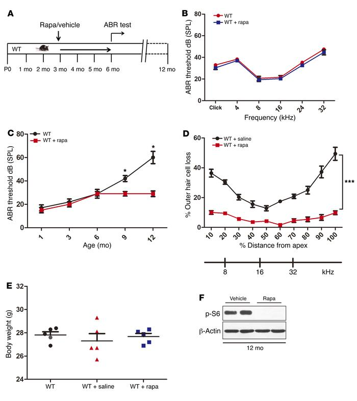 Rapamycin protects aged mice against ARHL. (A) Schematic of rapamycin tr...