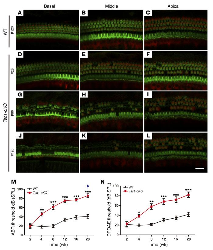 Tsc1-cKO mice undergo hair cell degeneration and gradual hearing loss f...
