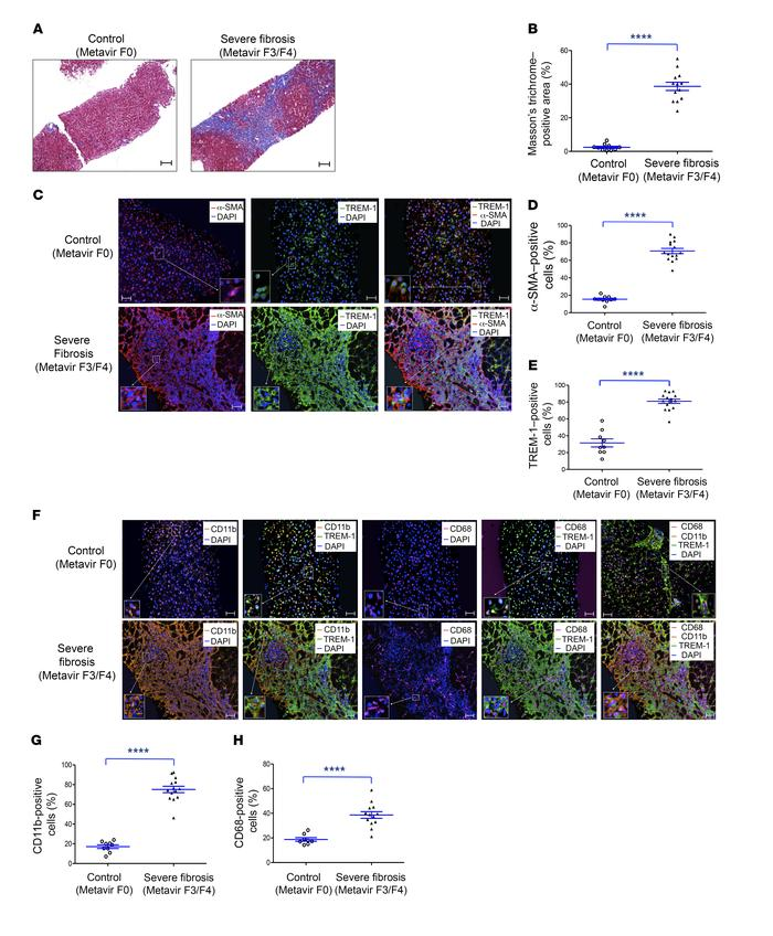 Increased TREM-1–, CD11b-, and CD68-positive cell infiltration in human ...