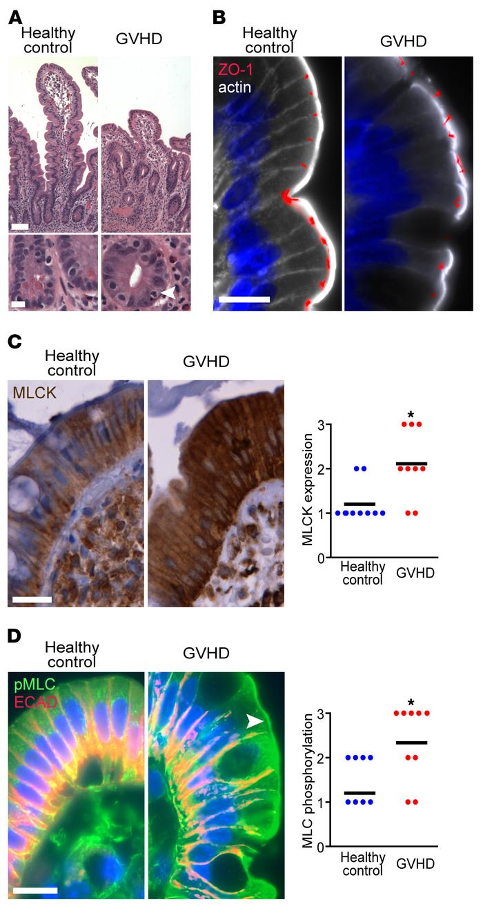MLCK210 expression and myosin light chain phosphorylation are increased ...