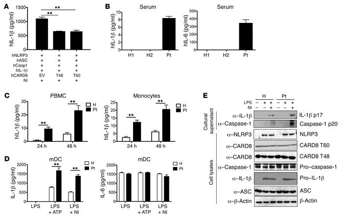 The CARD8 V44I mutation is associated with enhanced IL-1β production and...