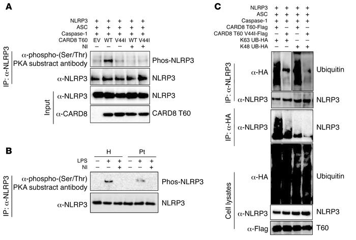 The CARD8 V44I mutation results in reduced NLRP3 serine phosphorylation ...
