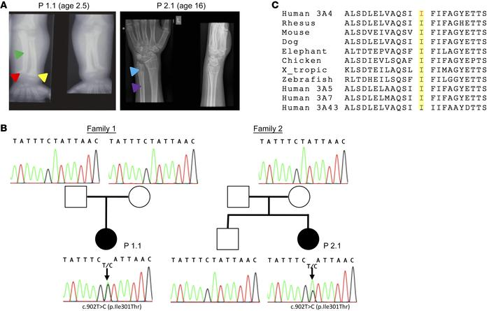 CYP3A4 mutation causes VDDR. (A) Wrist radiographs of the 2 probands are...