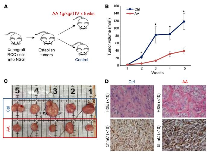 High-dose AA treatment leads to inhibition of ccRCC tumor growth in vivo...