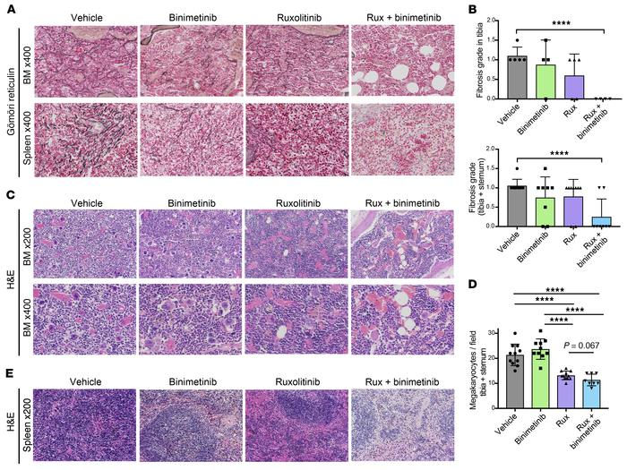 Combined JAK2/MEK inhibition reduces BM hypercellularity and fibrosis. (...