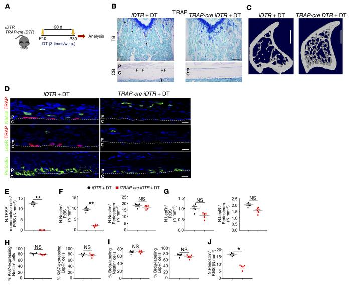 Ablation of TRAP+ cells impairs recruitment of PDCs for periosteal bone ...