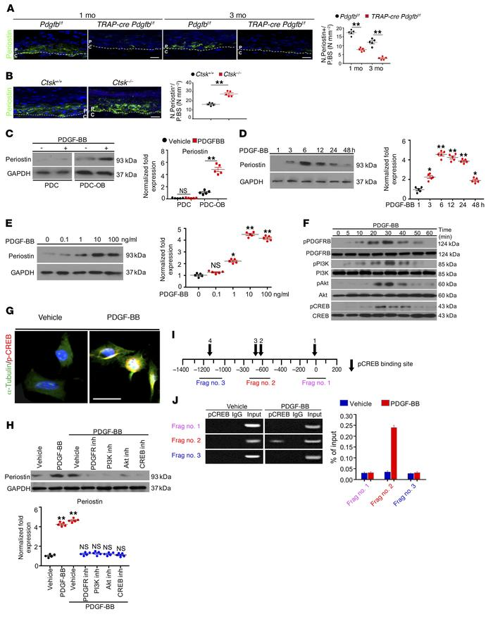 PDGF-BB induces periostin expression via the PDGFR-β/PI3K/AKT/-CREB sign...
