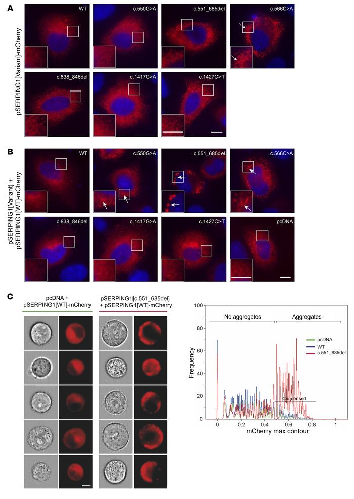 Intracellular localization of C1INH-mCherry detected by widefield micros...