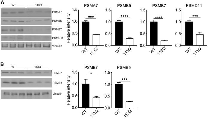 Proteasome subunits are decreased in AR113Q muscle. (A and B) LABC (A) w...
