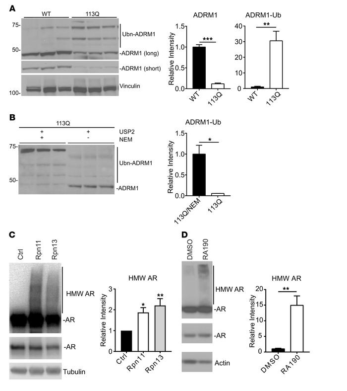 ADRM1 is ubiquitinated in AR113Q mouse muscle. (A) Lysates of 52-week qu...