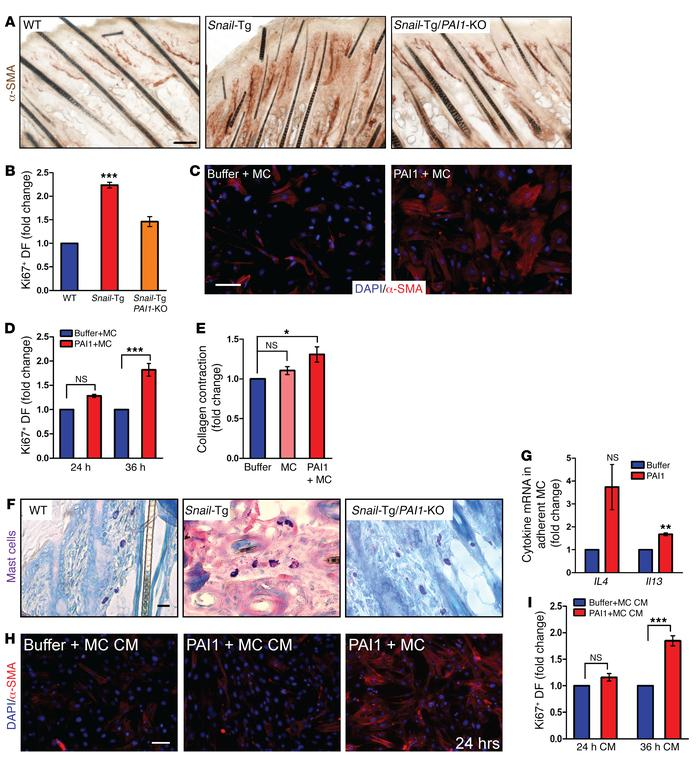 PAI1-mediated fibroblast–mast cell adhesion leads to activation of both ...