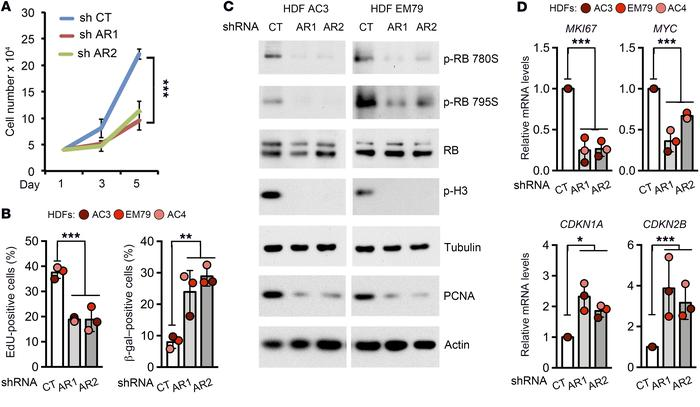 AR gene silencing in HDFs reduces proliferation and induces senescence....