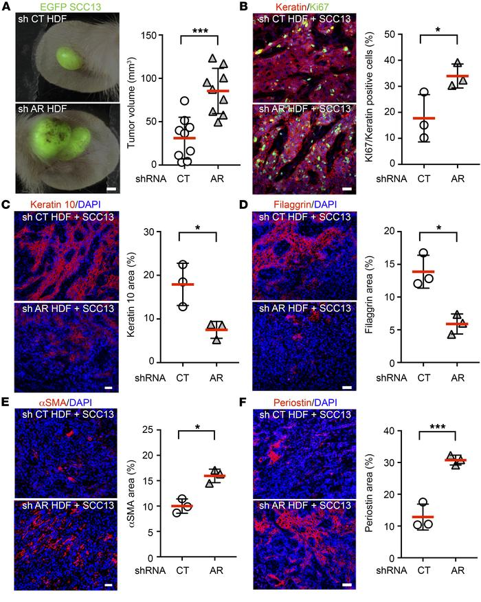HDFs with reduced AR expression favor SCC cell growth in vivo. (A) EGFP-...