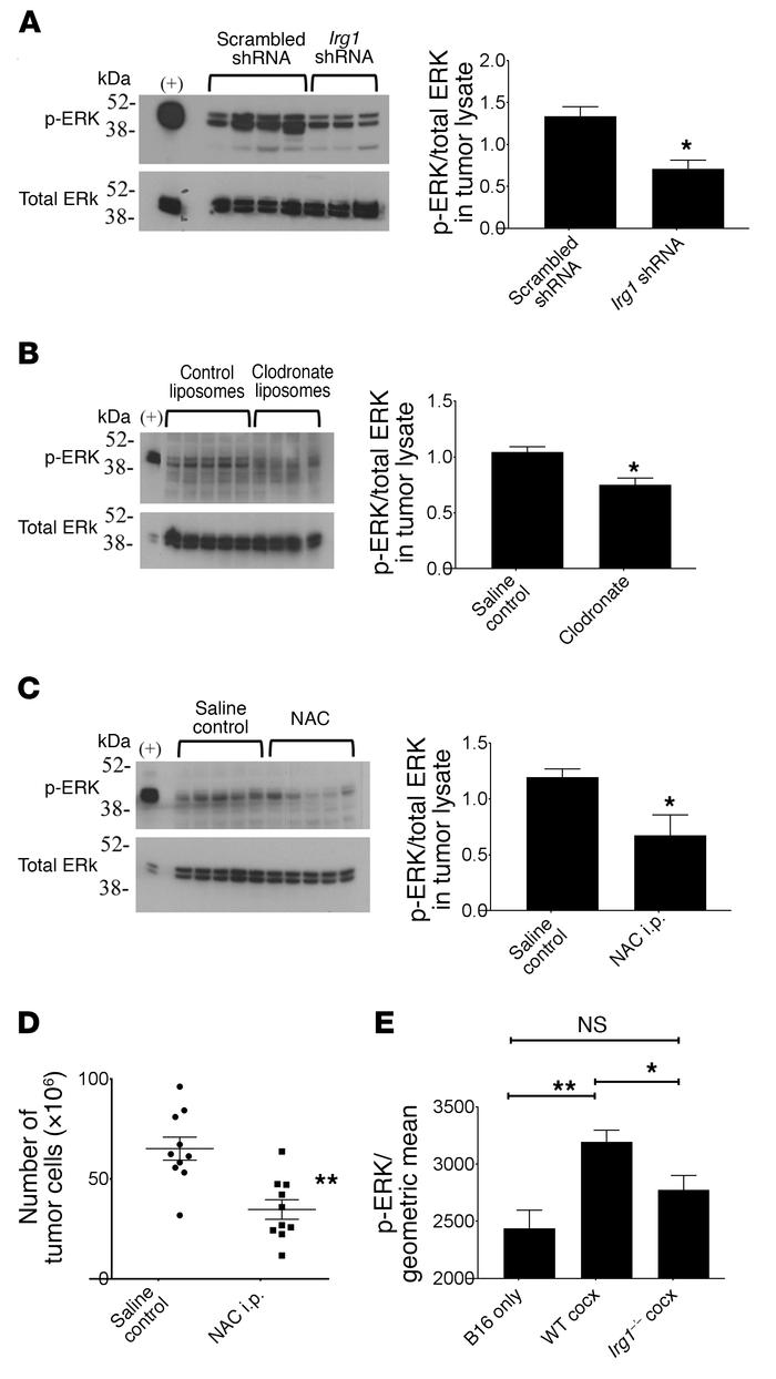 pResMϕ regulate MAPK activation in peritoneal tumors via itaconate and R...
