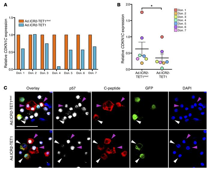 ICR2-TET1 deactivates p57 in human β cells. (A) CDKN1C mRNA expression i...