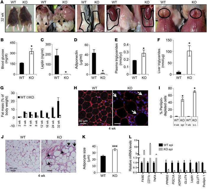 Adipocyte-specific SNAP23-KO mice display severe lipodystrophy associate...