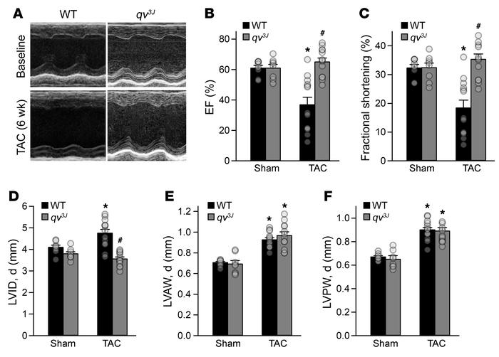 The qv3J allele prevents pressure overload–induced pathological remodeli...