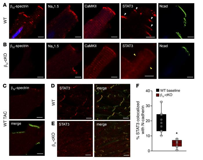 Altered subcellular localization of STAT3 in βIV-specific–deficient myoc...