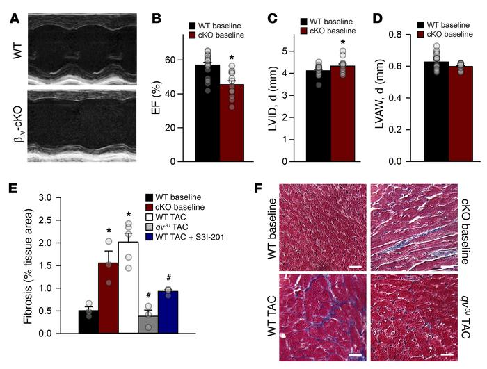 Cardiac-restricted deletion of βIV-spectrin induces maladaptive remodeli...