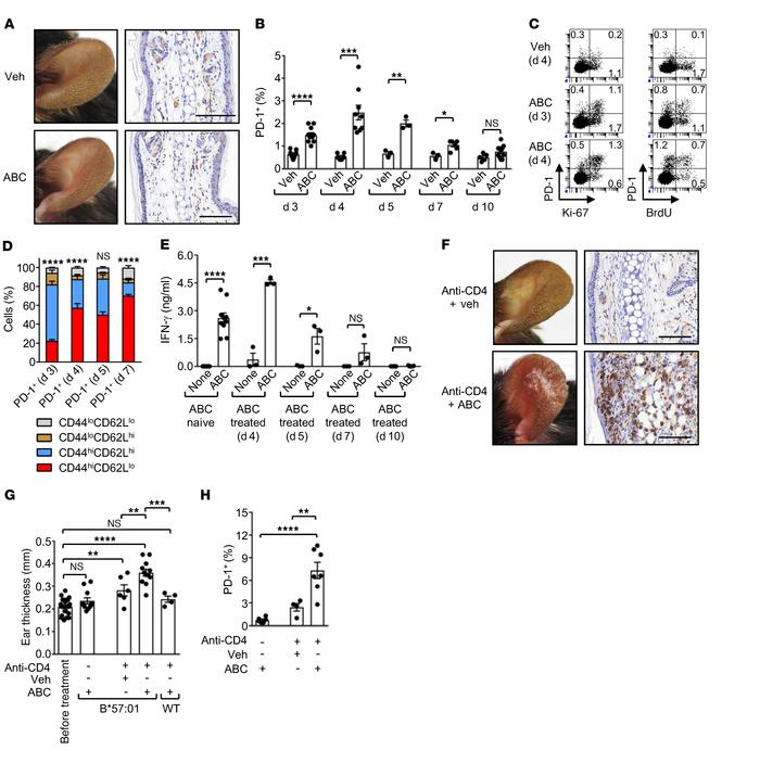 CD4+ T cells prevent ABC drug reactivity in HLA-B*57:01–Tg mice. HLA-B*5...