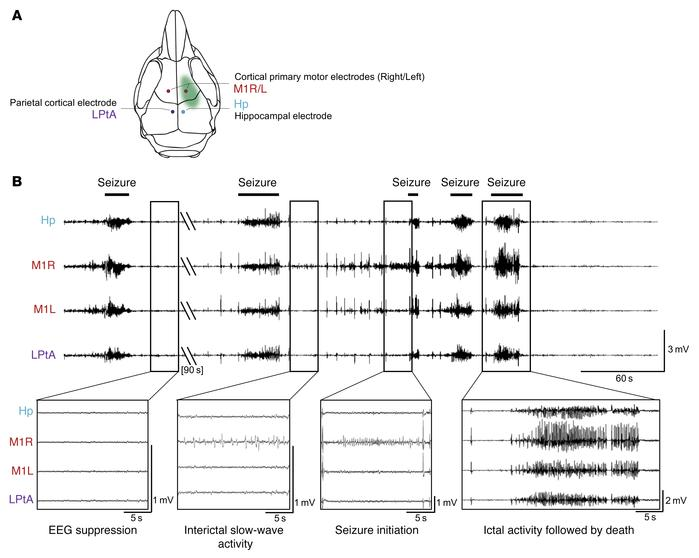 Epileptic activity of adult Depdc5fKO mice. (A) Schematic representation...