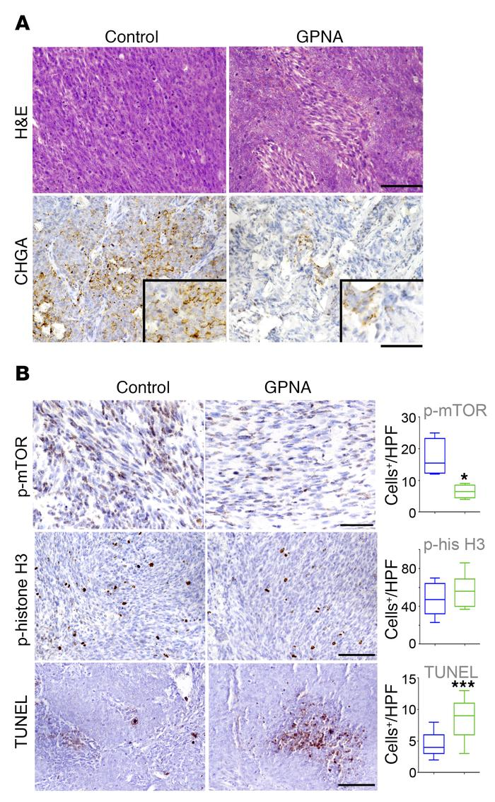 Glutamine uptake promotes tumor neuroendocrine differentiation and survi...