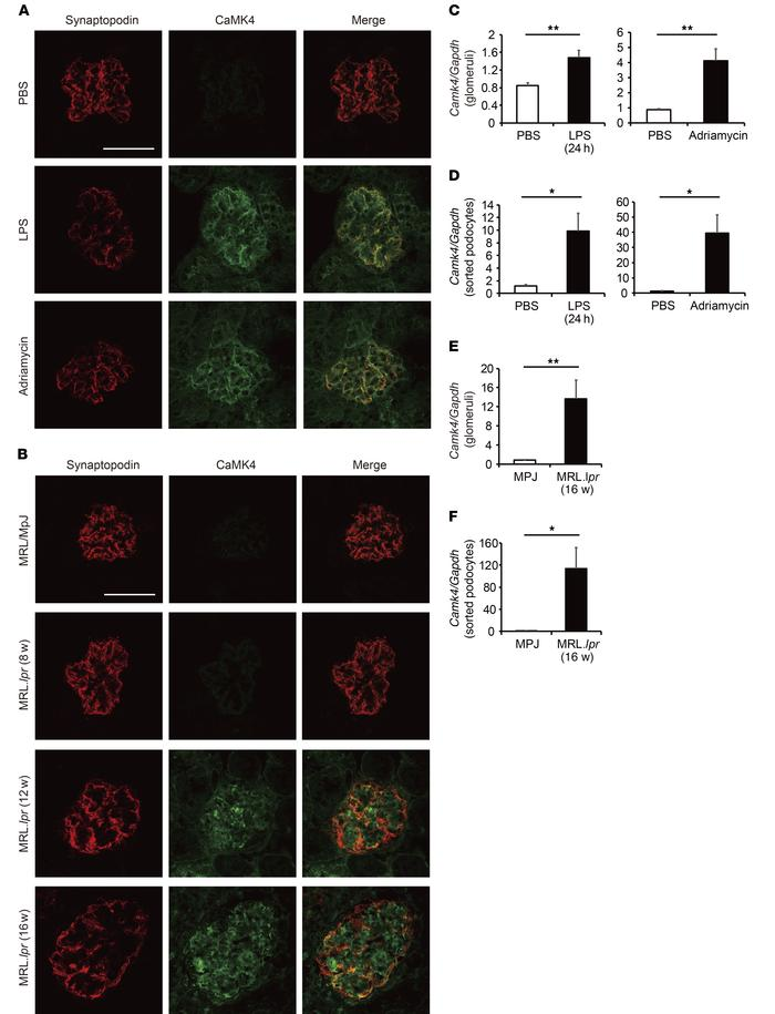 CaMK4 expression is increased in podocytes from lupus-prone and LPS- or ...