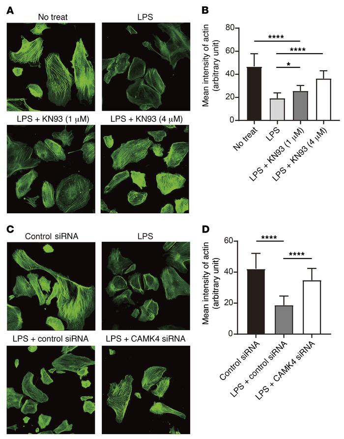 Inhibition or silencing of CaMK4 preserves actin structure of podocytes....