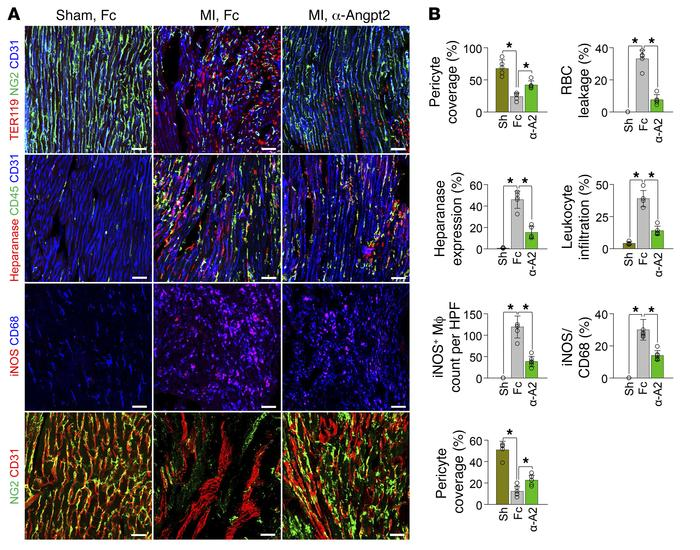 Therapeutic inhibition of Angpt2 prevents vascular disintegration, perme...