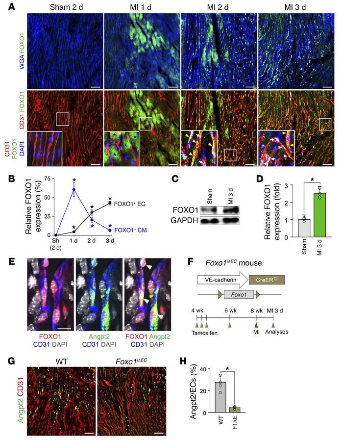 Marked increase of FOXO1 governs Angpt2 expression in ECs of the infarct...
