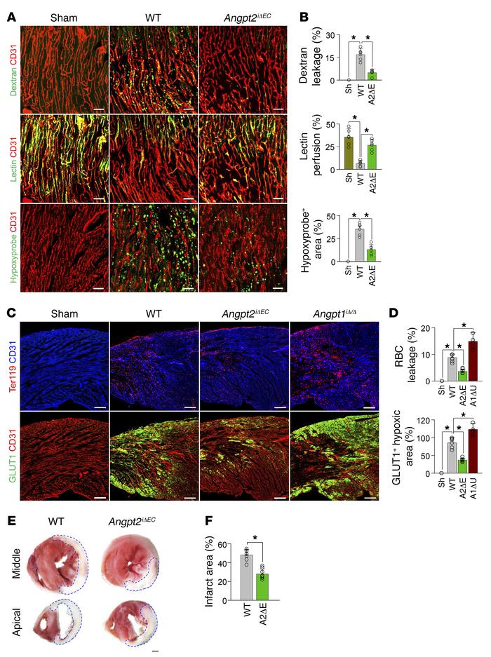 EC-specific depletion of Angpt2 mitigates vascular leakage and improves ...
