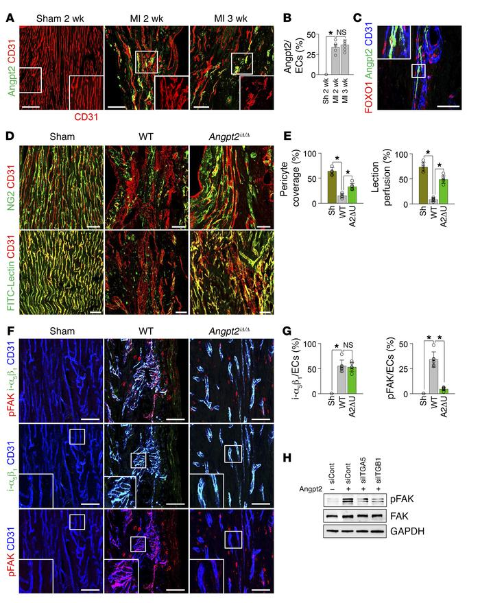 Angpt2 contributes to adverse vascular remodeling, thereby inhibiting ef...