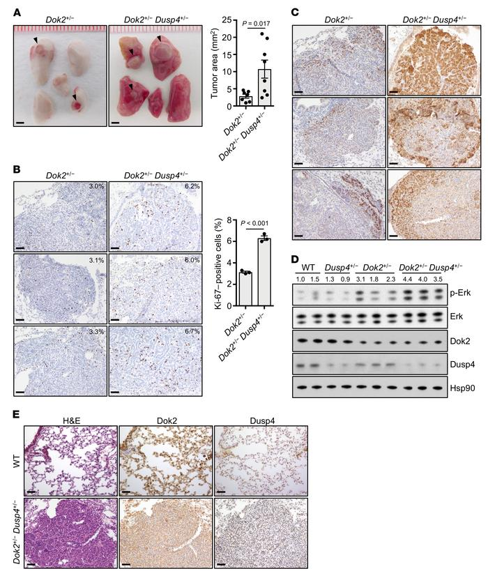 Histopathology of lung tumors in Dok2+/− and Dok2+/−Dusp4+/− mice. (A) G...