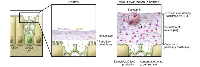 Mucus dysfunction in asthma. The airway epithelium made up of ciliated c...