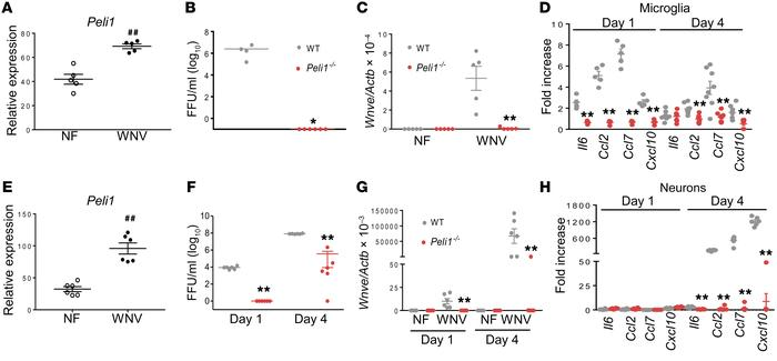 WNV infection and induction of immune responses in microglia and neurons...