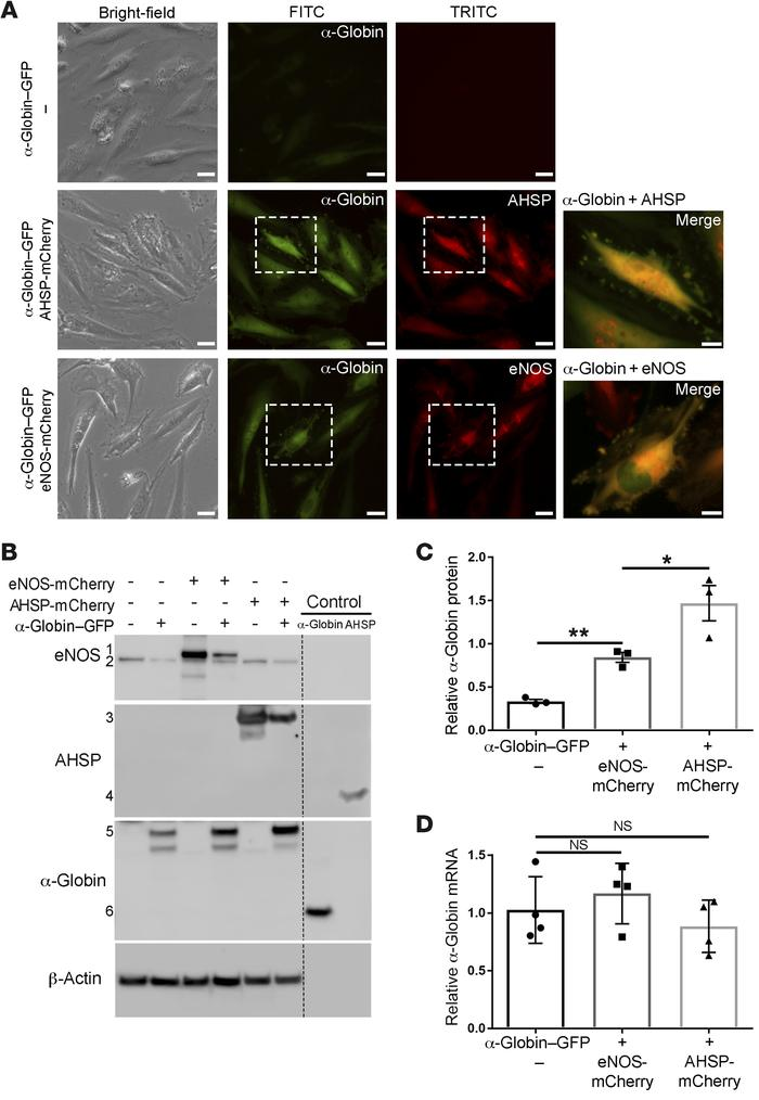 AHSP or eNOS stabilizes α-globin in cells. (A) Human coronary ECs were t...